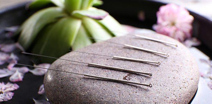 Om akupunktur